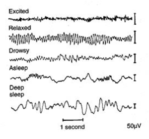 Figure 1: EEG waves shown at different times.