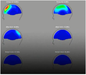 Figure 3: Showing the different brainwaves at the third eye region