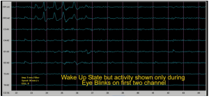 Figure 5: Shows the activity on the various electrodes on Mohanjis head