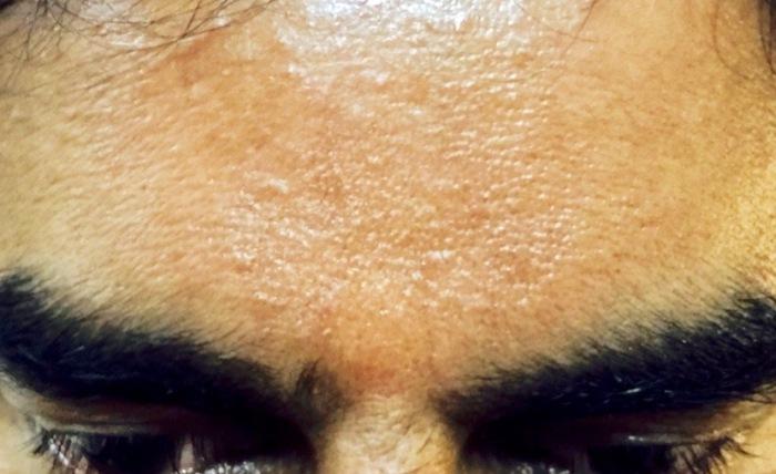 Mohanji Forehead